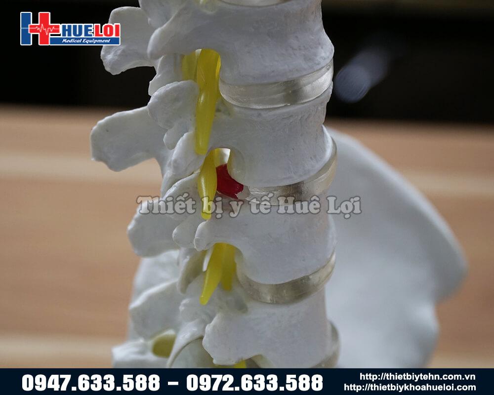 mô hình giải phẫu cột sống thắt lưng tháo rời